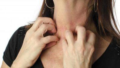 mulher coçando a pele com candidíase