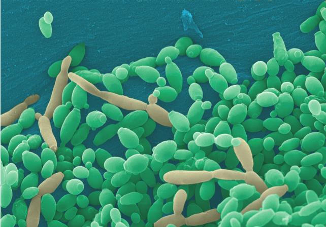 fungo da candida albicans no microscópio