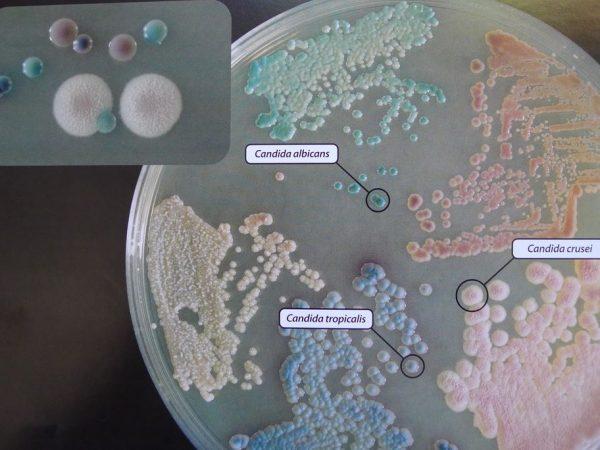 Teste de laboratório em CROMagar com a Candida ALbicans