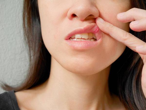 mulher mostrando o sapinho na boca