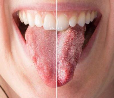 como tratar candidiase na boca